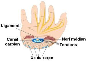 Main - Syndrome du canal carpien