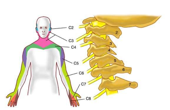 La douleur du cou - Radiculopathie